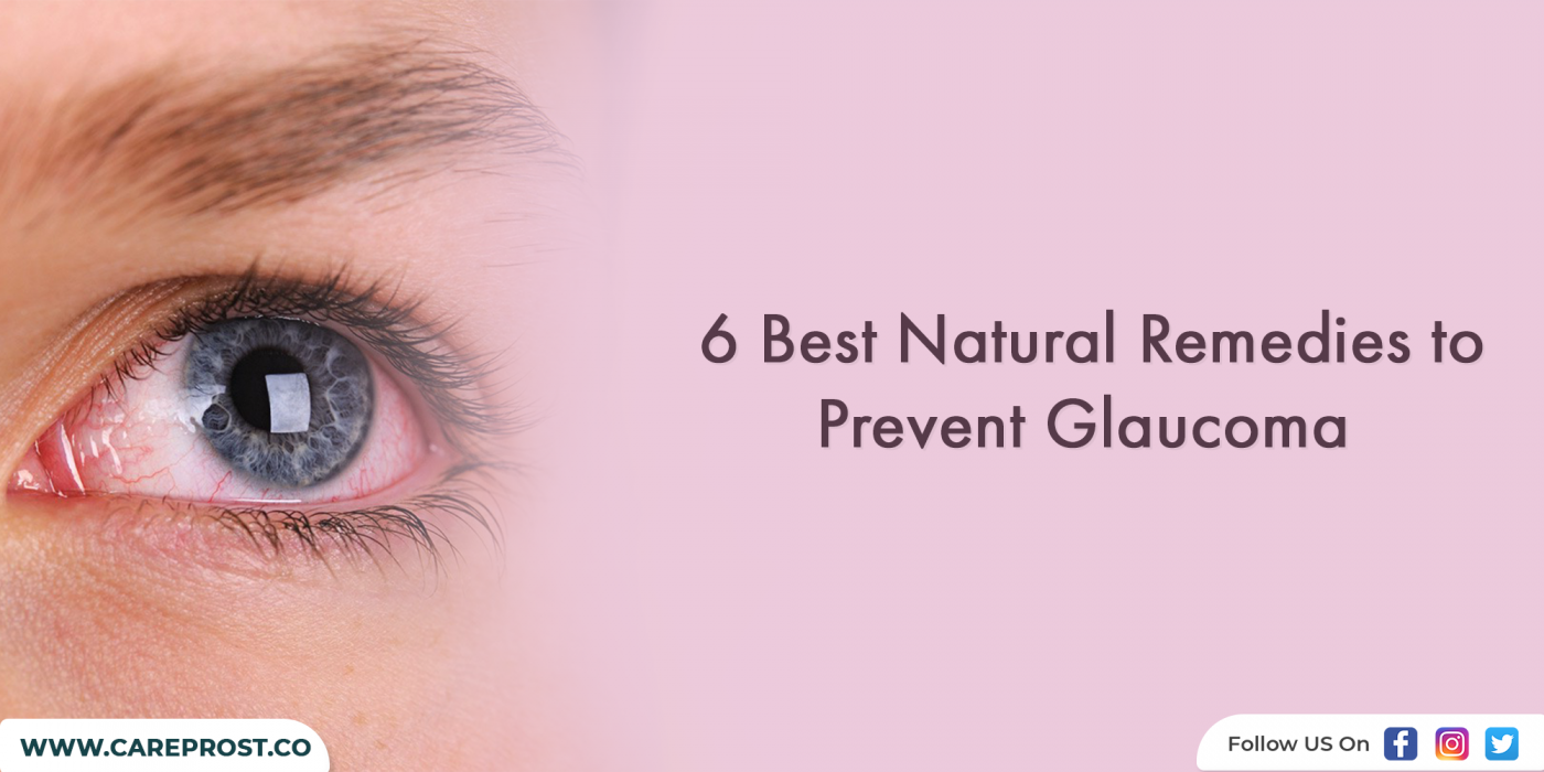 6 Best Natural Remedies to Prevent Glaucoma