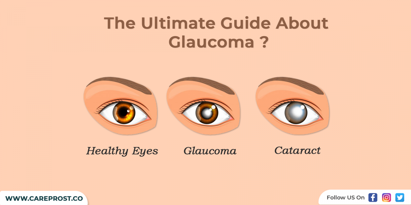 The Ultimate Guide About Glaucoma ?