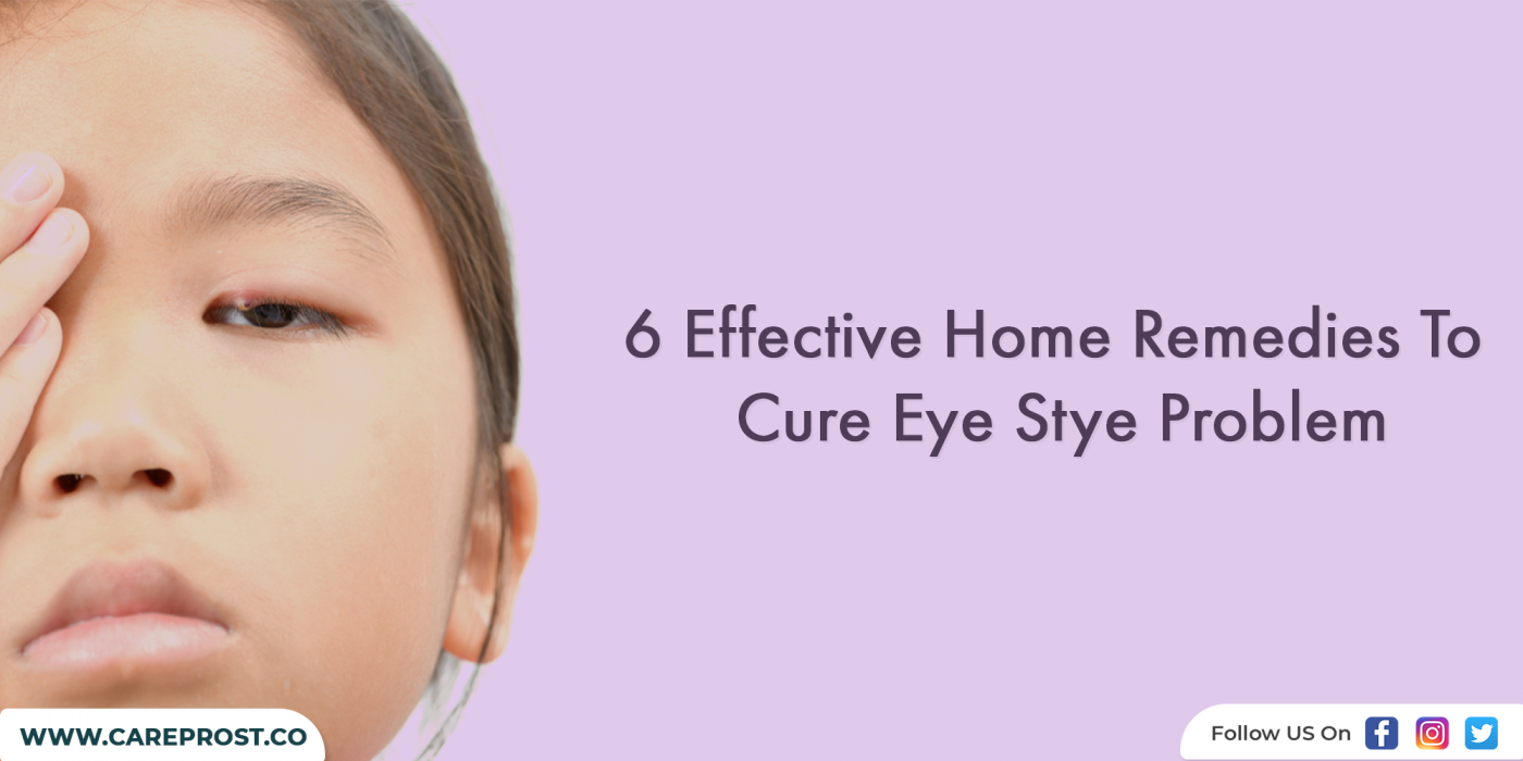 6 Effective Home Remedies To Cure Eye Stye Problem