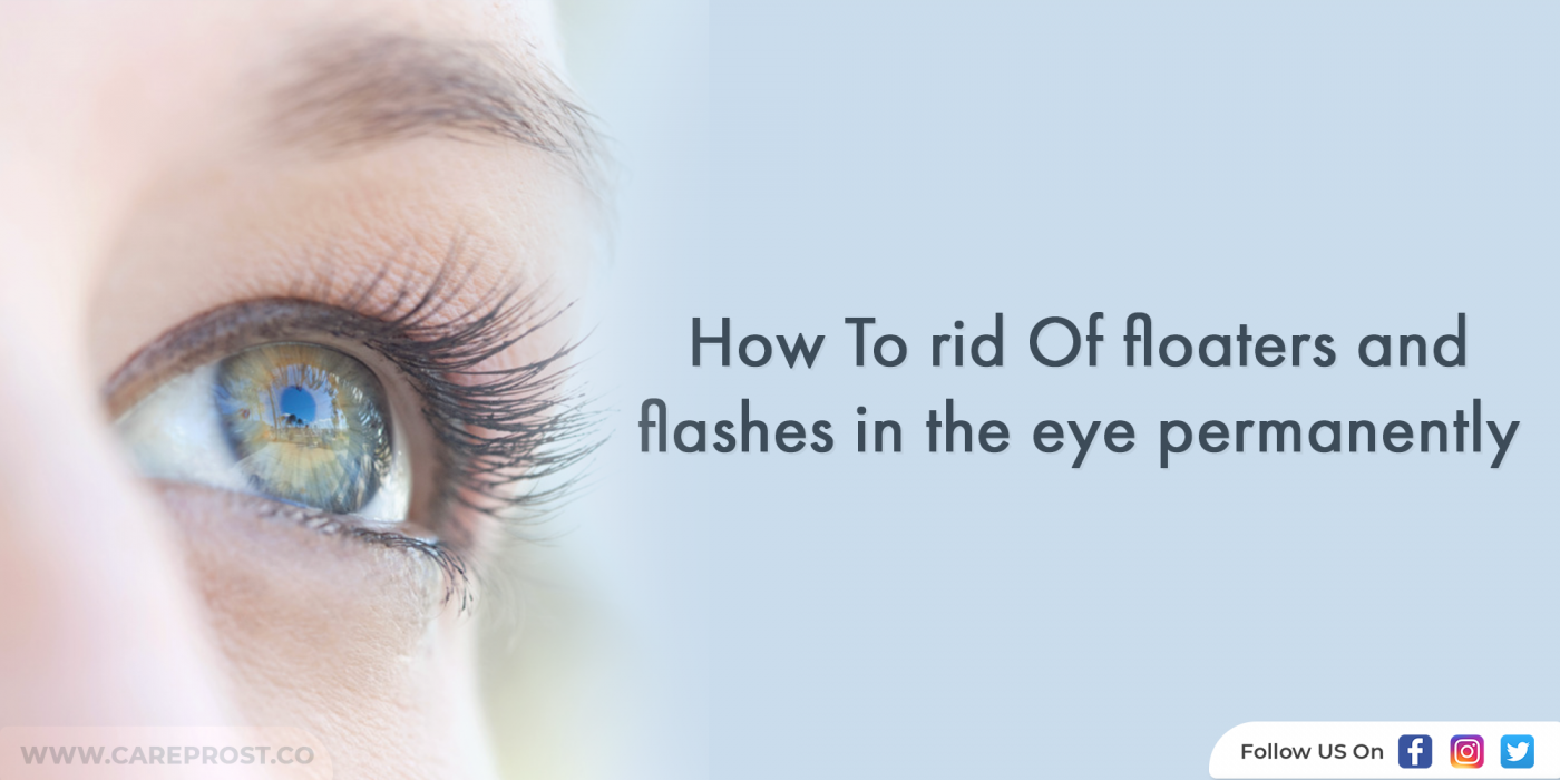 How To Rid Of Floaters And Flashes In The Eye Permanently