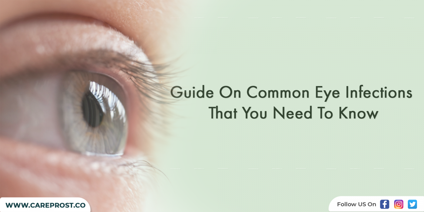 Guide On Common Eye Infections That You Need To Know