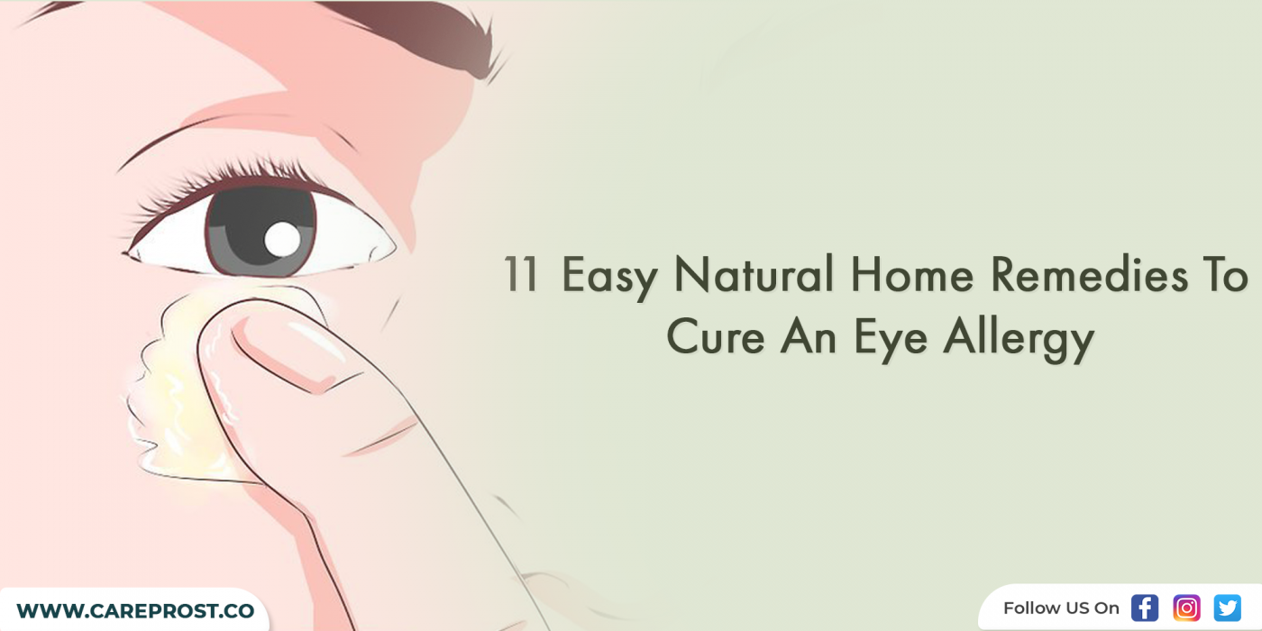 11 Easy Natural Home Remedies To Cure An Eye Allergy