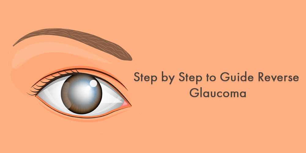 Step by step to guide Reverse Glaucoma