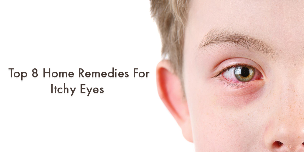Top 8 Home Remedies for Itchy Eyes