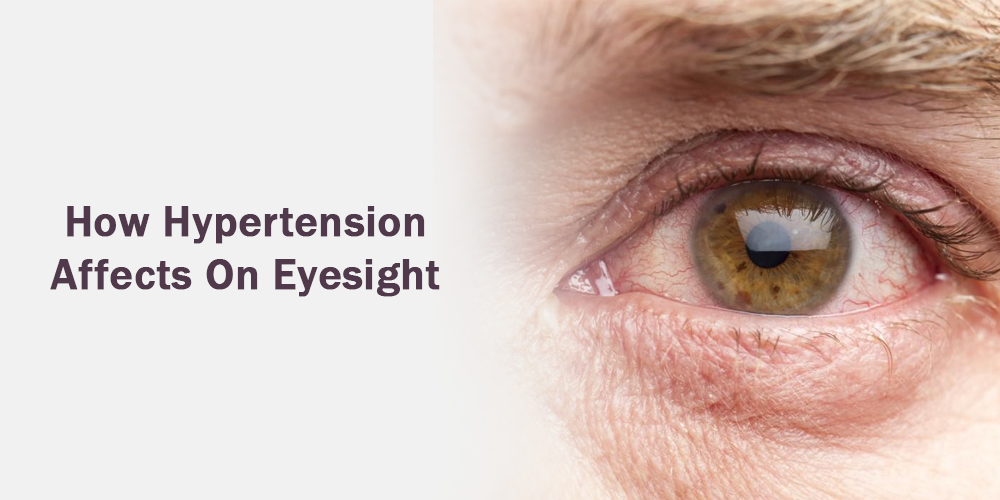 How Hypertension affects on eyesight